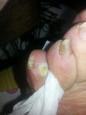 foto 1 Heloma intradigitale V dito sinistro.